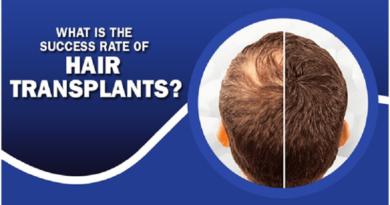 Hair Transplants?